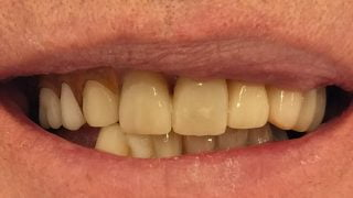 Malcolm - Porcelain Crowns, Composite Veneers after