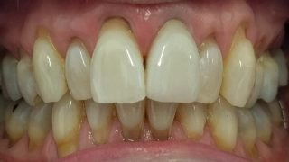 Julie - Porcelain Crowns, Teeth Whitening after