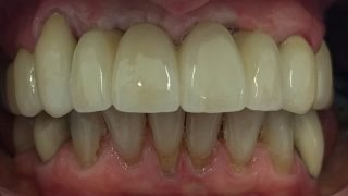 Catriona - Dental Implants, Porcelain Crowns after