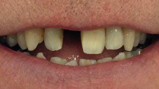 Matt - Dental Implants before