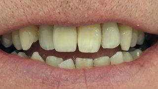 Matt - Dental Implants after