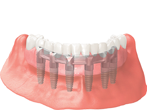 dental implants full arch fixed