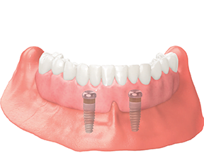 dental implants full denture