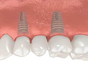 dental implants multiple teeth