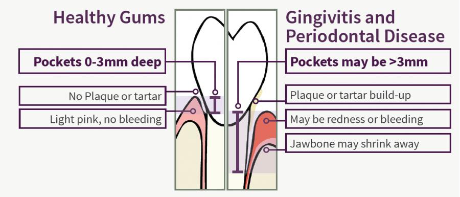 gums diagram