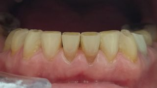 Christine - Composite Veneers before