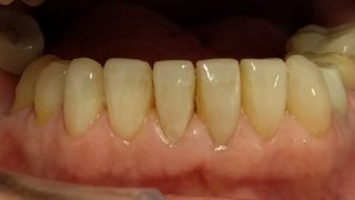Christine - Composite Veneers after