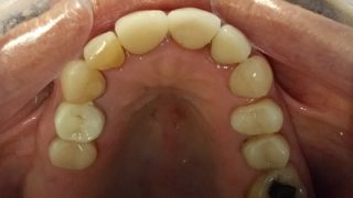 Christine - Porcelain Crowns, Tooth-Coloured Fillings after