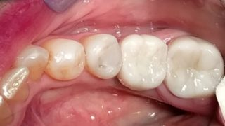 Joanne - Dental Implants, Porcelain Crowns after