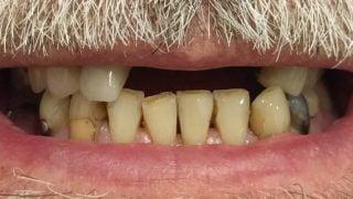 John - Dental Implants before