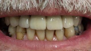 John - Dental Implants after