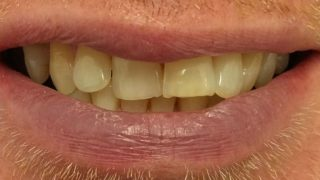 Antony - Teeth Whitening before