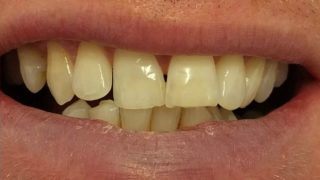 Antony - Teeth Whitening after