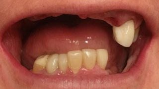 Daphne - Dental Implants before