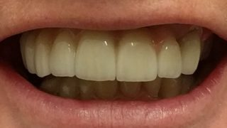 Daphne - Dental Implants after