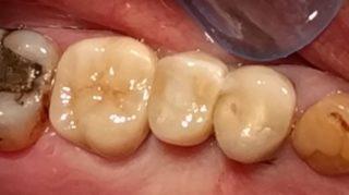 Catherine - Dental Implants after