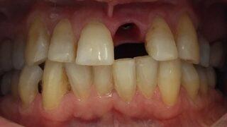 Antony - Dental Implants before