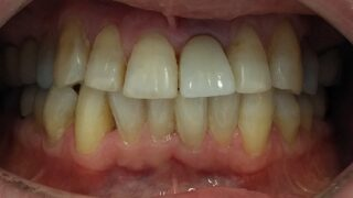 Antony - Dental Implants after